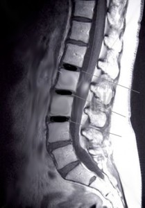 spine injuries can be included under jones act settlements